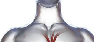 Kunstherz: Lebensretter in der Brust - SPIEGEL ONLINE - Gesundheit