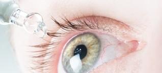 Tränen, jucken, brennen: Wenn die Augen zu trocken sind - SPIEGEL ONLINE - Gesundheit