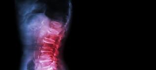 Chronisches Wirbelsäulensyndrom: So hilft medizinisches Cannabis