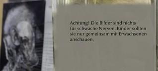 Dr. Senckenbergische Anatomische Sammlung an der Uniklinik Frankfurt in Bildern | Frankfurter Neue Presse