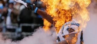 Super Bowl: NFL-Footballer und ihr gefährliches Selbstverständnis