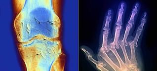 Knochen an Knochen