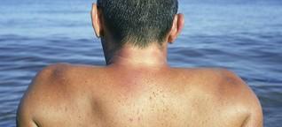 Sonnenschutz: Ab in den Schatten!