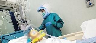 Experten streiten, ab wann Covid-19-Kranke beatmet werden sollen