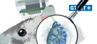 Universitätsmedizin Göttingen verbessert Hör-Implantate