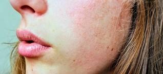 Was unsere Haut mit uns macht
