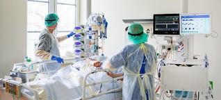 Studie zu Covid-19: Jeder dritte Patient überlebt die künstliche Beatmung nicht